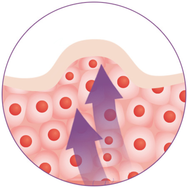 Medisana Masážní přístroj proti celulitidě AC 855